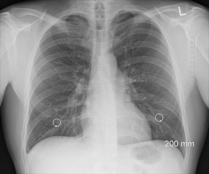 В субботу, 2 марта, в городской поликлинике жители нашего города смогут пройти рентгенологическое исследование-флюорографию, сообщает администрация Жуковской городской клинической больницы.
