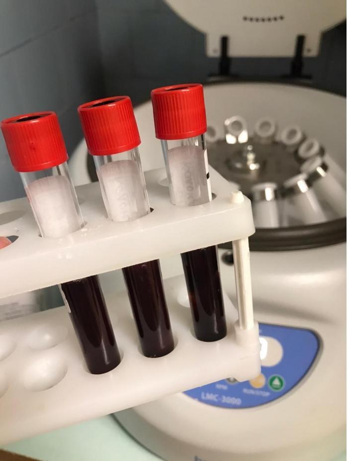 По данным городской поликлиники Жуковской ГКБ на 3 июня в городском округе в домашних условиях, под наблюдением врачей в связи с коронавирусной инфекцией находится: 457 (+34) человек.