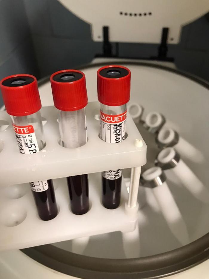 По данным городской поликлиники Жуковской ГКБ на 5 июня, пятница в городском округе в домашних условиях, под наблюдением врачей в связи с коронавирусной инфекцией находится: 4448 (-25) человек.