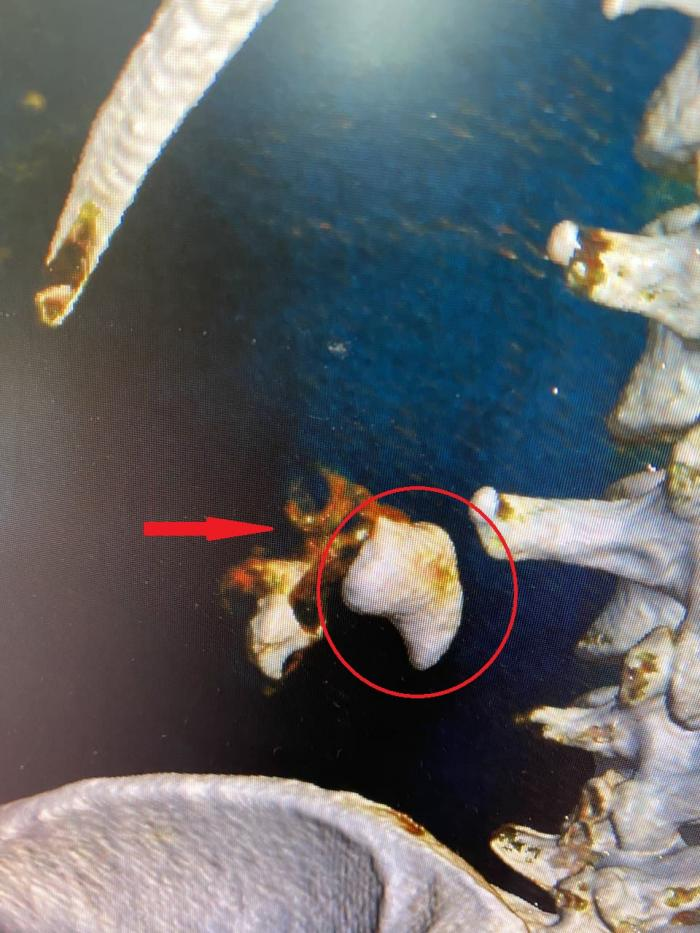 На днях хирурги урологического отделения Жуковской ГКБ провели уникальную операцию по удалению крупного коралловидного камня из почки.