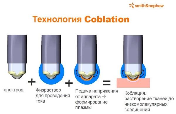 Холодноплазменная коблация - это активно применяемый в оториноларингологии высокотехнологичный метод, при котором для рассечения и коагуляции биологических тканей используется энергия пучка холодной (всего 40-50 градусов С) плазмы.  Внимание! Хирургические вмешательства с использованием коблатора проводятся при заключении договора платных услуг. Подробности - [a href=http://www.zhgkb.ru/serv/serv_181.php]здесь[/a] [br] [br]